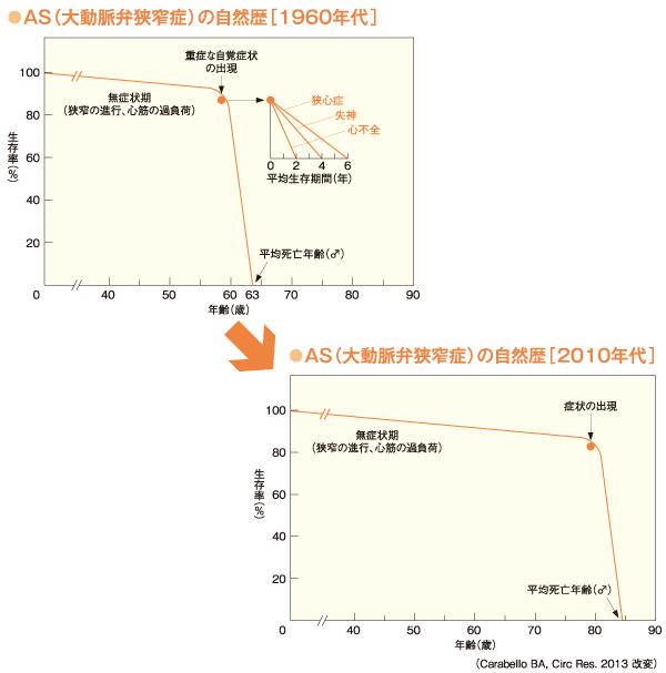 AS(大動脈弁狭窄症)の自然歴[1960年代]と[2010年代]の変化